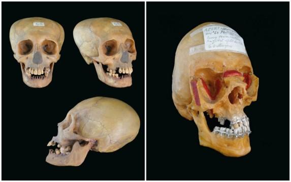 """Les crânes de Paul Tessier.À gauche : """"observer"""", à droite: """"Oser"""" © DR"""
